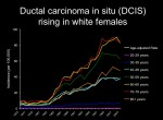 Ductal Carcinoma In Situ (White Women)